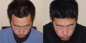 Asami gebruiksaanwijzing, hair, hoe gebruiken ?