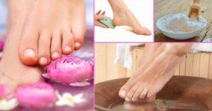 hoe de behandeling van de nagel schimmel
