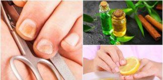schimmelinfecties van de nagels en hun behandeling met onycosolve