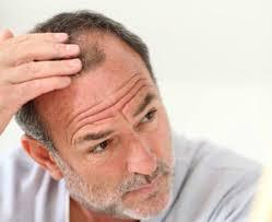 Haaruitval en kaalheid, of FollicleRx is effectief